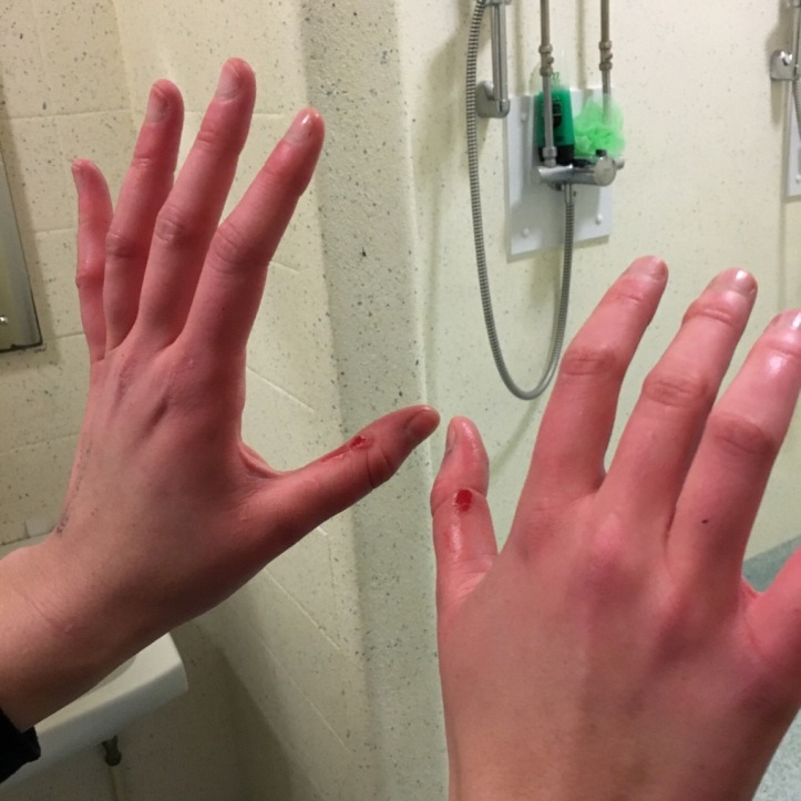 Picture 5: Blisters are inevitable after not handling blades over the break, but these on exchange student Marianna Gailus were particularly impressive. Photo: CL, with an iPhone 6 and VSCO.